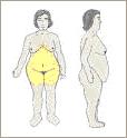 imagem_obesidade_ginecoide