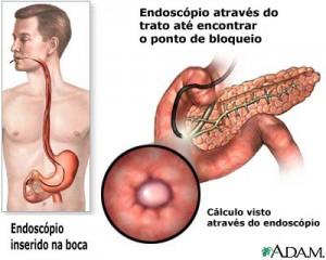 papilotomia